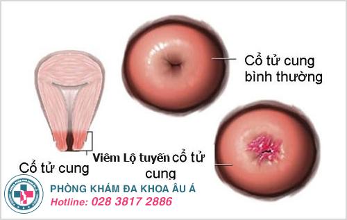 Viêm lộ tuyến cổ tử cung độ 1: Hình ảnh nguyên nhân dấu hiệu cách trị