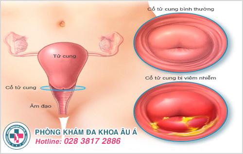 Viêm lộ tuyến cổ tử cung độ 2: Hình ảnh nguyên nhân dấu hiệu cách trị