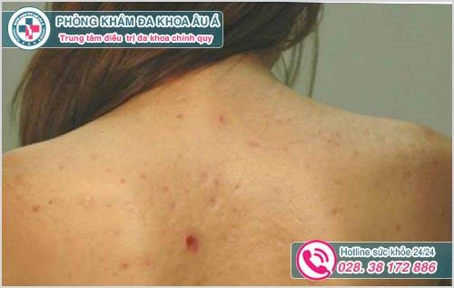 Viêm nang lông ở lưng: Hình ảnh Nguyên nhân Dấu hiệu Cách chữa