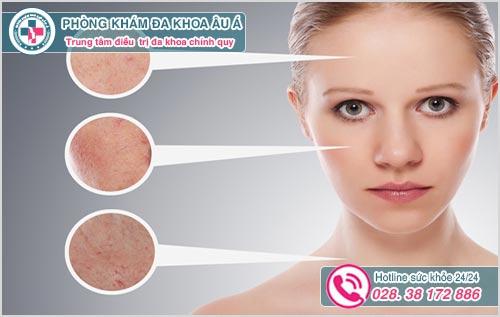 Viêm nang lông ở mặt: Hình ảnh Nguyên nhân dấu hiệu cách chữa