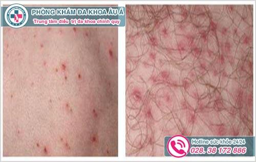 Viêm nang lông vùng kín: Hình ảnh Nguyên nhân Dấu hiệu Cách chữa