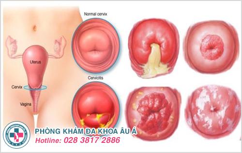 Viêm cổ tử cung gây ra những cơn đau sau quan hệ tình dục, đau buốt khi đi tiểu, đau bụng dưới