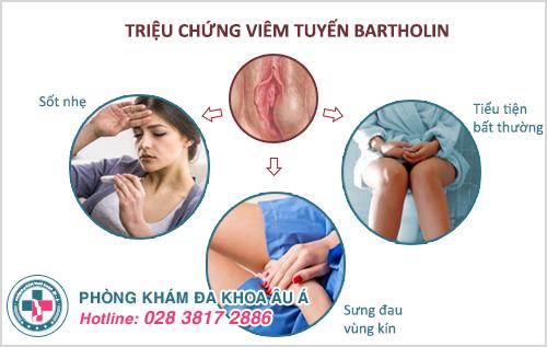Viêm tuyến Bartholin tái phát điều trị như thế nào?
