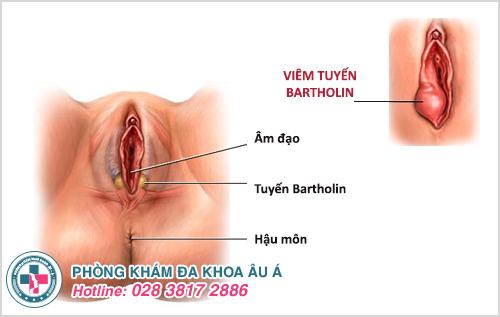 Điều trị viêm tuyến Bartholin ở đâu TPHCM? (Chữa bao nhiêu tiền)