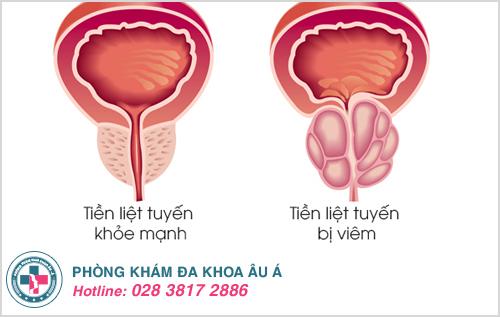 Viêm tuyến tiền liệt có gây vô sinh không ?