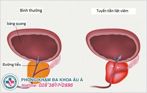 Viêm tuyến tiền liệt mãn tính : Nguyên nhân dấu hiệu cách chữa